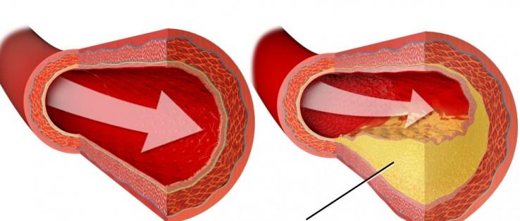 tłuszcz odkładający się w tętnicy